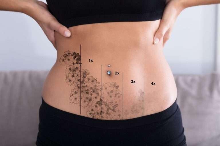 Skinial Tattoo Removal Perth